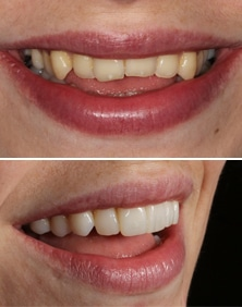 Composite bonding case before and after