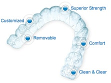 Invisalign features