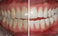 Teeth before/after whitening treatment